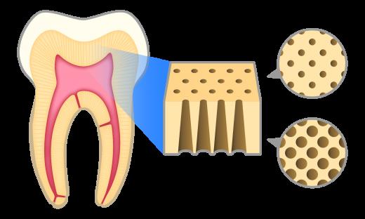 歯の構造と象牙細管