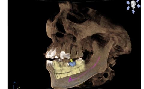 歯の治療、光学スキャナーの応用