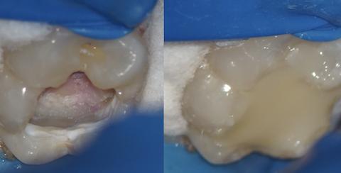 虫歯除去、神経を保護した後の写真