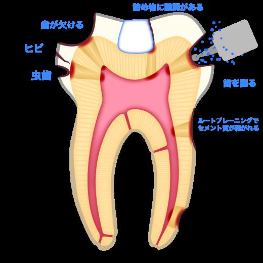 象牙細管を通し、歯髄炎が起こる原因
