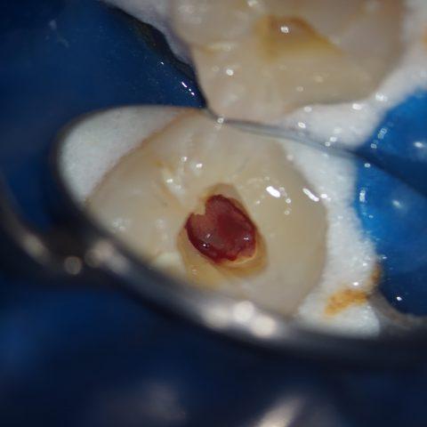 歯の内部の神経