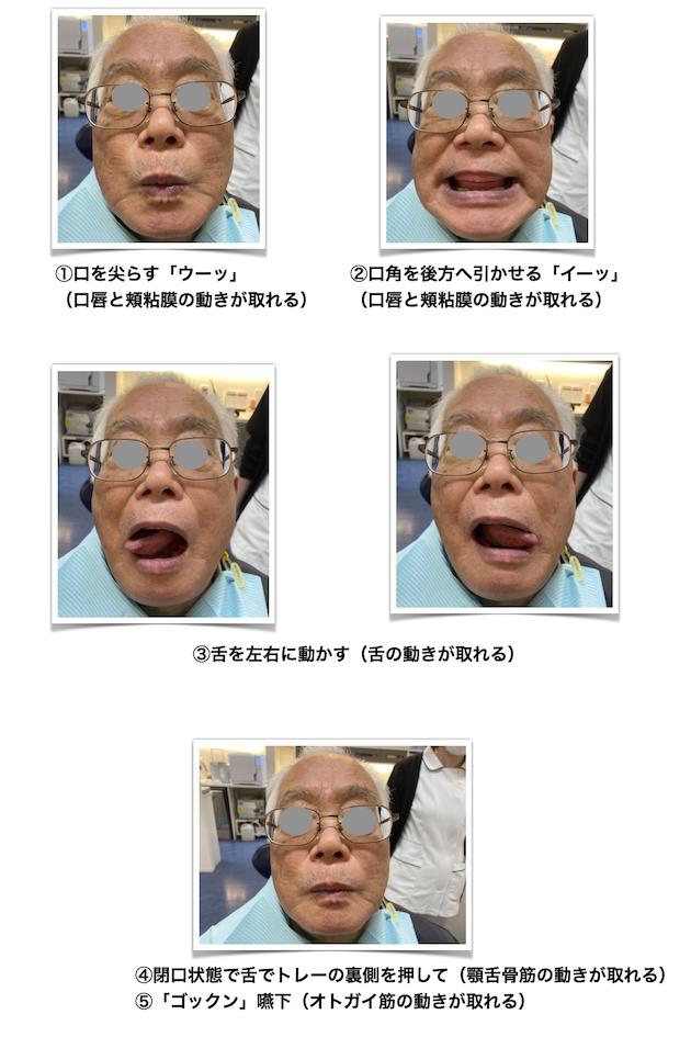 入れ歯の型取り、患者さんの動き