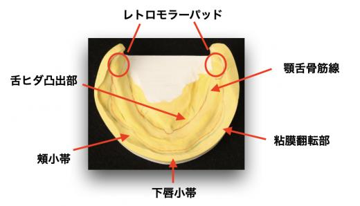 入れ歯の型取りのポイント